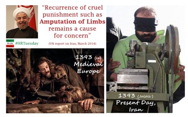 Amputation of Limbs in Iran